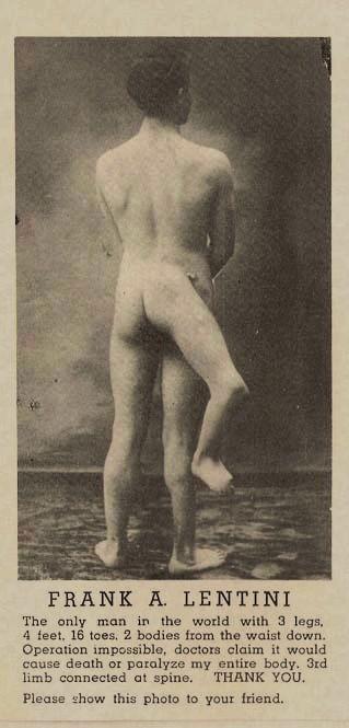 Francesco Lentini, Pria dengan Tiga Kaki (5 pics)